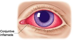 Conjuntivitis / Ojo rojo