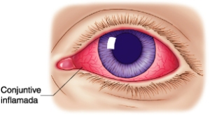 Aspecto típico del ojo en una conjuntivitis
