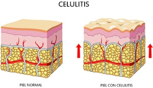 estructura-de-la-piel-con-celulitis-foto
