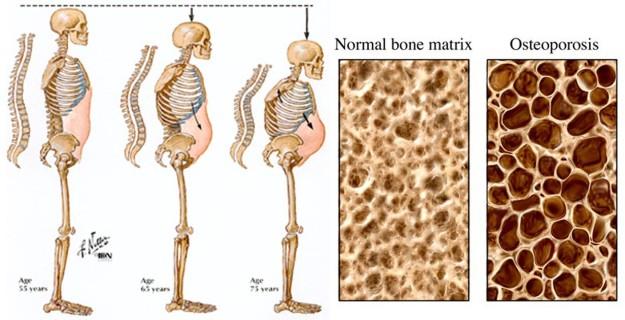 6-osteoporosis